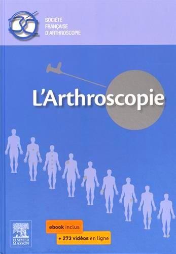 L Arthroscopie